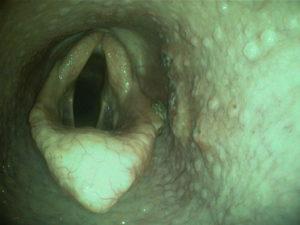Chirurgie Bild nacher